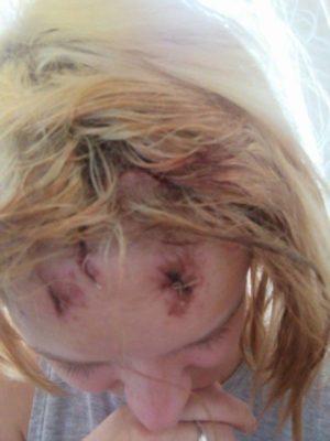 В Ужгороді представники ромської національності пограбували та розбили голову дівчині