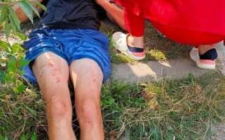 В Ужгороді по звірячому побили людину: швидка відреагувала оперативно, поліція – ігнорувала (ФОТО 18+)