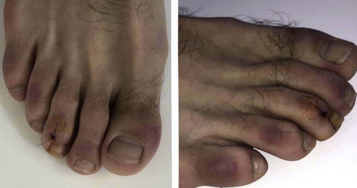 «Ковідні пальці»: Вчені назвали новий симптом коронавірусу, який нагадує обмороження