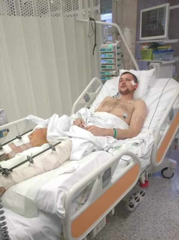 ФОТО. Закарпатцю, якого збила фура у Празі, зробили операцію, тепер потрібні кошти на реабілітацію