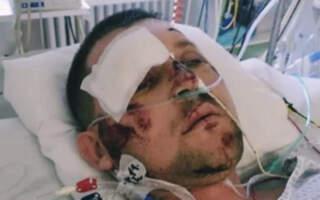 Закарпатець у Празі потрапив у страшне ДТП: Сім'я просить допомоги