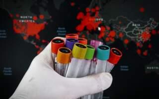 США, Китай, Німеччина – три десятки держав допомагають Україні боротися з коронавірусом