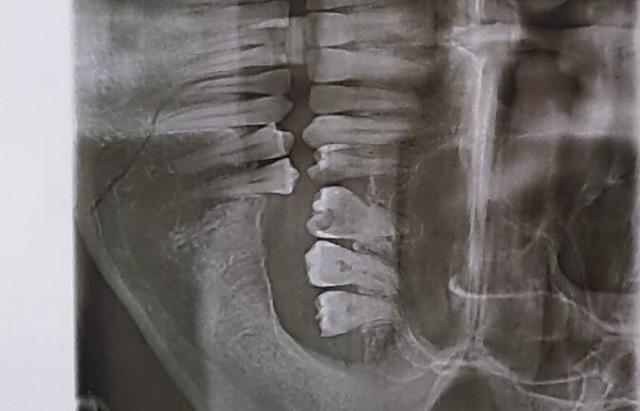 На Закарпатті цигани жорстко побили інваліда АТО: Родичі бояться, що дана бійка залишиться без уваги з боку поліції