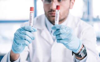 Де і скільки захворіло на Ковід: Статистика по районах